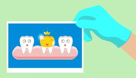 Tooth with golden dental crown icon in cartoon style on a white background. Tooth with golden dental crown icon in cartoon style on a white background Stock Photos