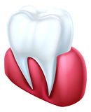 Tooth and Gum Royalty Free Stock Photo