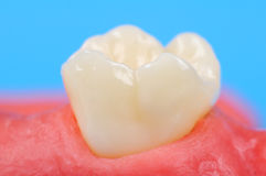Tooth. In the gum extra close up Royalty Free Stock Photography