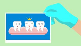 Tooth health icon Yellow crown. Cute funny cartoon smiling character. King queen prince princess Oral dental hygiene. Children tee. Th care. Baby background Royalty Free Stock Photo