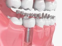 Tooth human implant - 3D Rendering. Tooth human implant. Dental concept. Human teeth or dentures. 3d rendering Stock Image