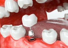 Tooth human implant -before - 3D Rendering. Tooth human implant before. Dental concept. Human teeth or dentures. 3d rendering Royalty Free Stock Photos