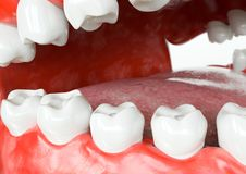 Tooth human implant -after- 3D Rendering. Tooth human implant after . Dental concept. Human teeth or dentures. 3d rendering Stock Images
