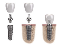 Tooth human implant Royalty Free Stock Photography