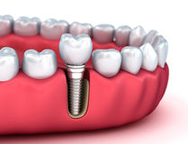 Tooth human implant, Medically accurate illustration white style Stock Image