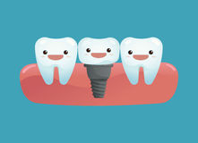 Tooth implant Stock Image