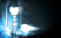Tooth implant Royalty Free Stock Photo