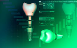 Tooth implant Royalty Free Stock Photography