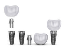 The tooth implant Royalty Free Stock Photo