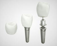 Tooth implant disassembled - (3d rendering) Royalty Free Stock Photography