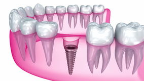 Tooth implant installation , Medically accurate