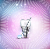 Tooth implant Stock Images