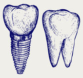 Tooth implant and molar Royalty Free Stock Photos