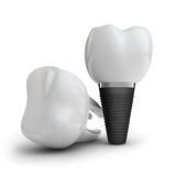 Tooth implant Royalty Free Stock Photos