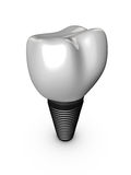 Tooth implant Royalty Free Stock Image