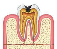 Tooth inner anatomy of a cavity Royalty Free Stock Photography