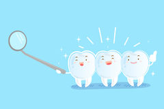 Tooth with invisible braces. On the blue background Royalty Free Stock Images
