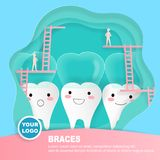 Tooth with invisible braces concept. On the green background Stock Image