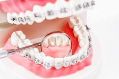 tooth model with metal wire dental braces and mirror dental equipment. royalty free stock image