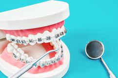 Tooth model with metal wire dental braces. stock images