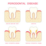 Tooth periodontal disease, Royalty Free Stock Photo