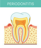 Tooth with periodontitis Stock Photo
