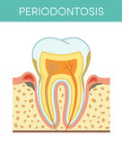 Tooth with periodontosis Royalty Free Stock Images