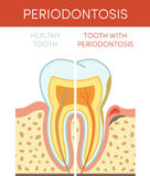 Tooth with periodontosis Stock Images