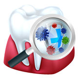 Tooth Protection. Tooth and gum being protected from bacteria by a shield viewed through a magnifying glass Stock Photos