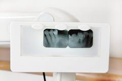 Tooth x-ray Royalty Free Stock Photos