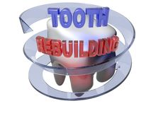 Tooth Rebuilding- 3D rendering. A white beautiful tooth is surrounded by a blue semi-transparent arrow. On the top of the tooth there is the write `TOOTH Royalty Free Stock Photography