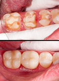 Before and after. Tooth restoration before and after dental treatment royalty free stock images
