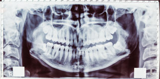 Tooth's radiography Stock Photography