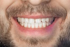 Tooth smile close up. The concept of healthy proper oral hygiene. Tooth smile close up. concept of healthy proper oral hygiene stock photos