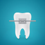 Tooth with staples Stock Images