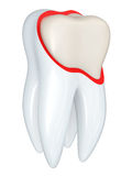 Tooth structure Royalty Free Stock Image