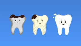 Tooth treatment stages flat poster royalty free stock photo