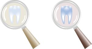 Tooth under magnifying glass Royalty Free Stock Photos