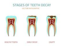Tooth vector icon Royalty Free Stock Photos