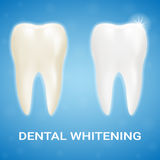 Tooth Veneer, Teeth Whitening, Whitening Toothpaste On A Background. Realistic Vector Illustration. royalty free illustration