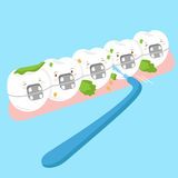 Tooth wear brace with brush Royalty Free Stock Photography
