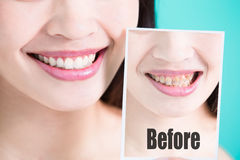 Tooth whiten concept Stock Image