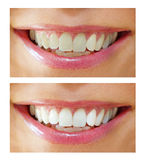 Tooth whitening - before ,after royalty free stock images