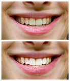 Tooth whitening - before ,after Royalty Free Stock Photo