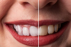 Tooth whitening royalty free stock photography