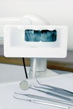 Tooth x-ray Stock Image