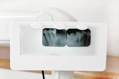 Tooth x-ray Royalty Free Stock Photos