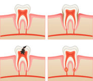 Toothache. Illustration of different dental disease Royalty Free Stock Photos