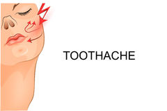 Toothache the girl. Vector illustration of a toothache at the girl Royalty Free Stock Photo