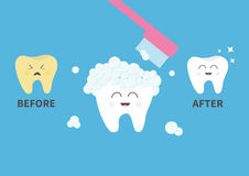 Toothbrush with toothpaste bubble foam. Healthy smiling white tooth icon. Crying bad ill yellow teeth. Before after infographic. C vector illustration